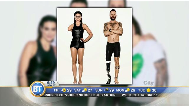 Vogue Brazil photoshops able-bodied models to look like Paralympians